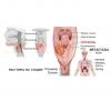 Рак горла,  гортани,  миндалин.  Лечение.